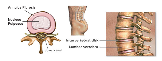 intervertebral disk prothesis Lumbar intervertebral disc prosthesis surgical implantation of an fda-approved lumbar intervertebral disc (ivd) prosthesis for chronic, unremitting, discogenic low back pain and disability secondary to single -level degenerative disc disease.