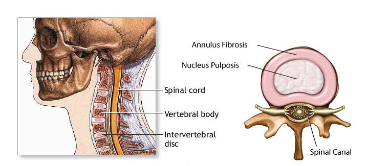 cervical-disc-web