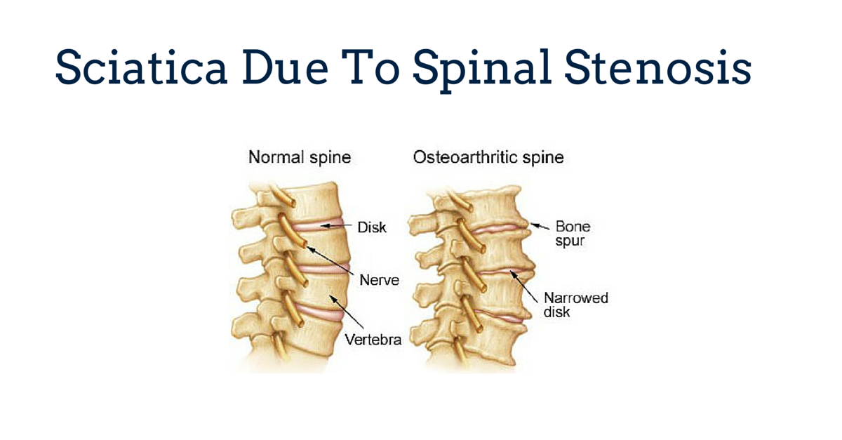 Sciatica Due To Spinal Stenosis Gray Chiropractic St