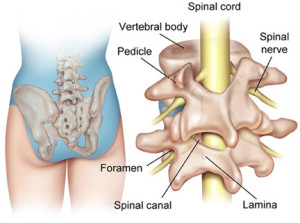 sciatics due to spinal stenosis1
