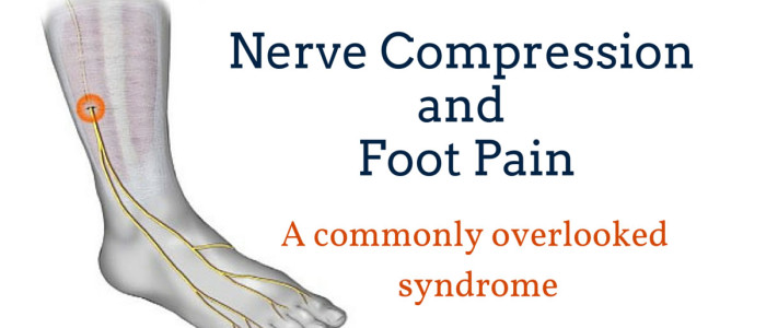 Foot Pain Due to A Nerve Entrapment