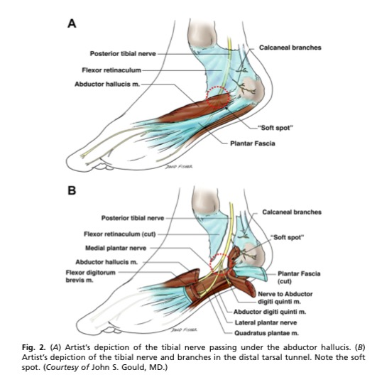 Foot pain due to a nerve entrapment from the tibial nerve (1).