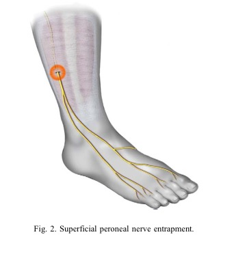 Foot Pain Due to A Nerve Entrapment - Gray Chiropractic St ...